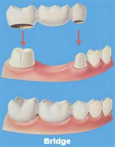 dental-bridge-tyngsboro