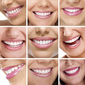 multiple smiles