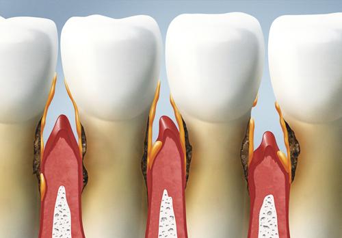 receeding gums